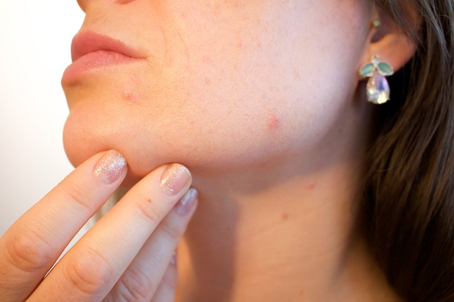 How to Help Your Children Deal With Acne