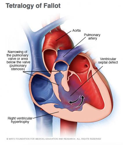 My Son Was Born With a Rare Congenital Heart Defect, Tetralogy of Fallot